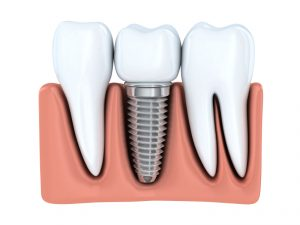 Learn how to care for dental implants in Syracuse after the procedure.