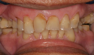 cracked tooth before crown